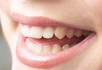 牙齿修复,看看你适合做哪种