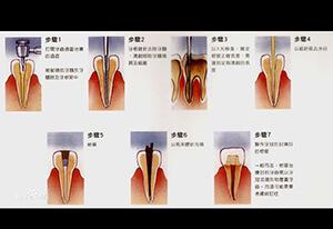 看着都疼的牙齿根管治疗全过程