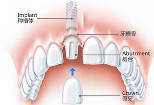 两分钟看懂种牙全过程,一定要保护好我们的牙齿