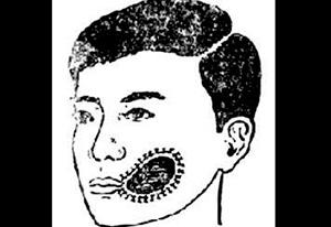 口腔颌面部创伤